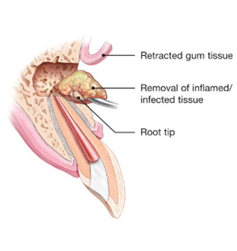 Apicoectomy | NW Endodontics