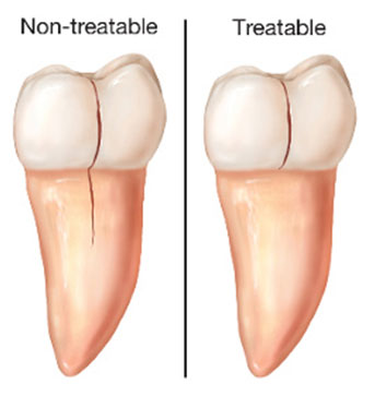 Cracked Teeth | NW Endodontics