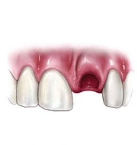 Injured Teeth | NW Endodontics