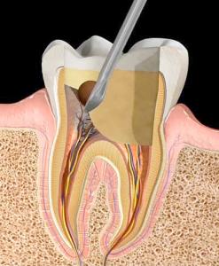 Pulpotemy | NW Endodontics
