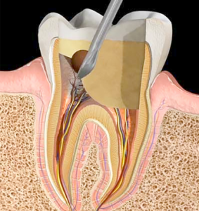 Pulpotemy   NW Endodontics