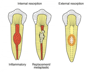 Resorption | NW Endodontics